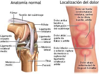 fractura causas: