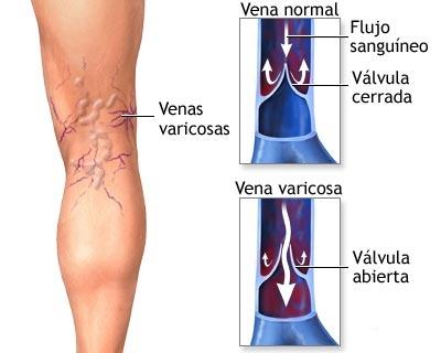 varices01